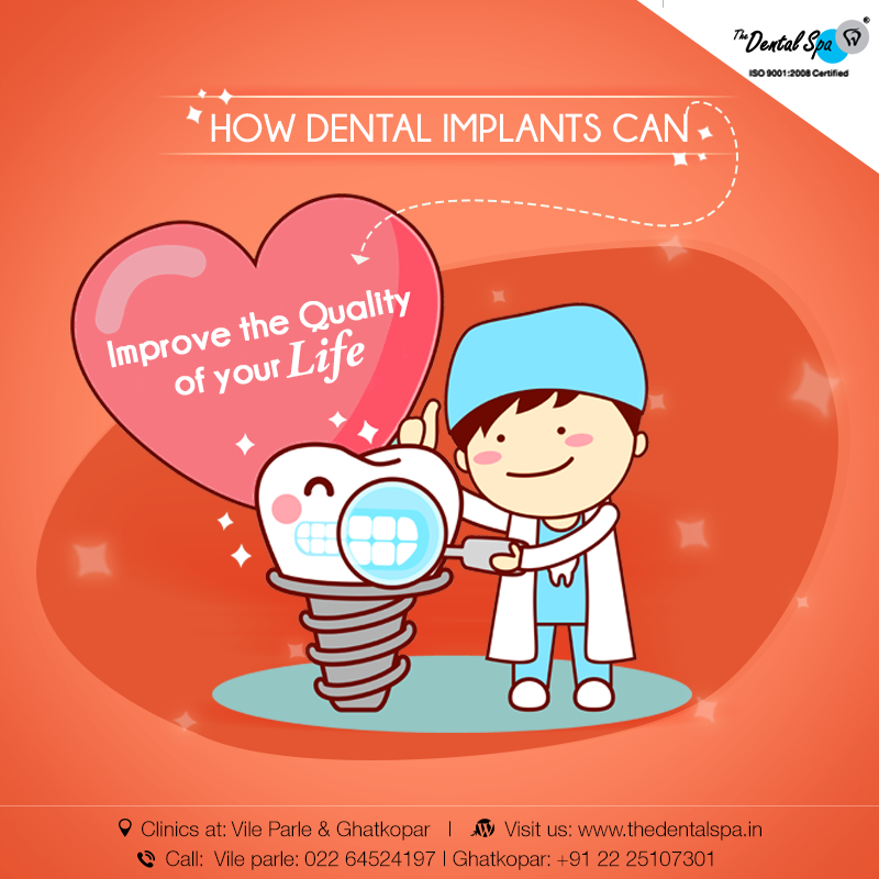 Below Are The Facts How Dental Implants Help In Improving Quality Of Your Life